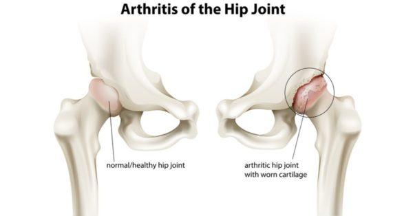 التهاب مفصل الفخذ