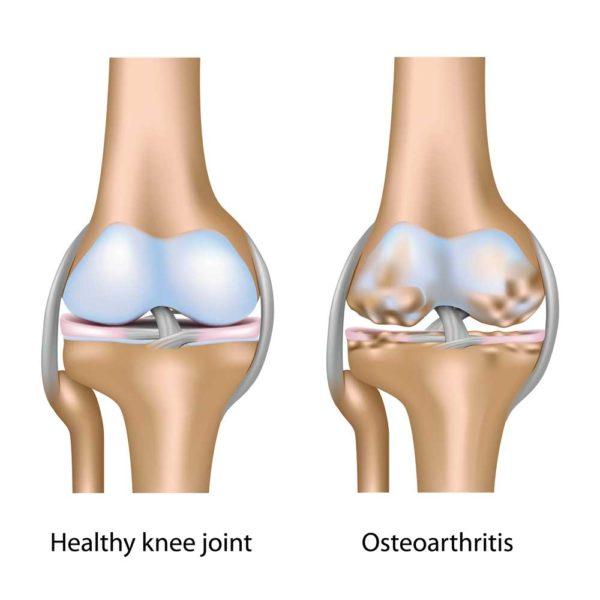 الفرق بين الركبة السليمة والمصابة