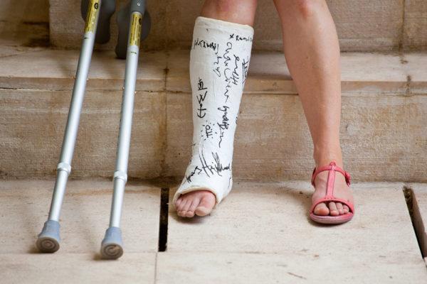 جبيرة قدم مكسورة