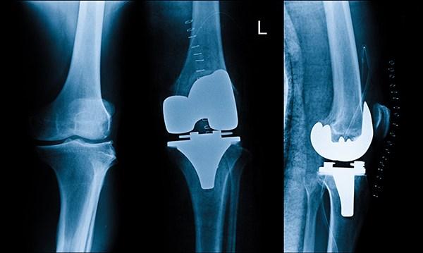 عملية تغيير مفصل الركبة اليسرى