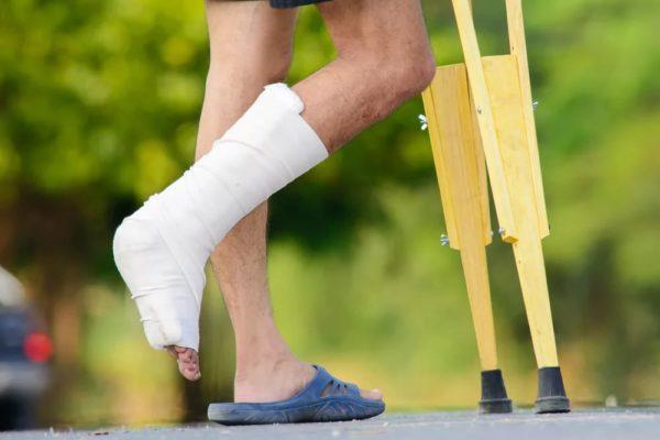 كسر فى القدم