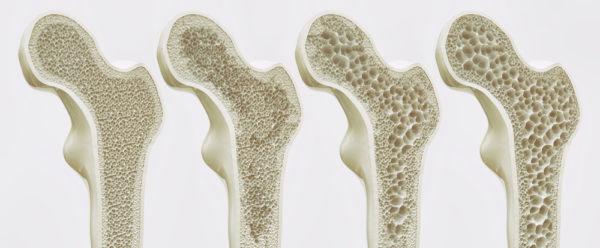 مراحل هشاشة العظام